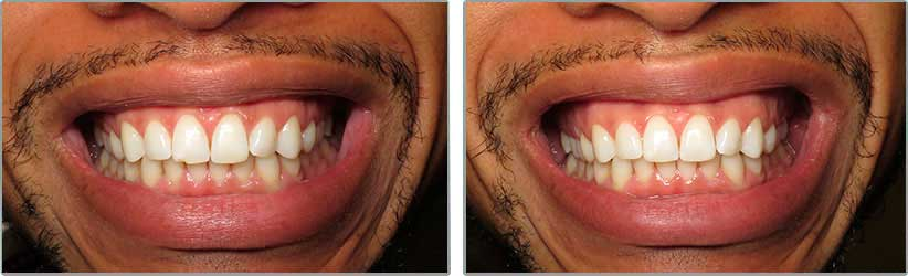 Bonding. Before and After Photos: Patient 4 - frontal view
