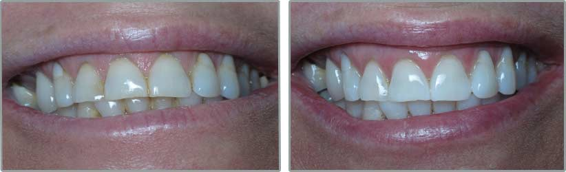 Teeth Whitening. Before and After Photos: Patient 1 - frontal view