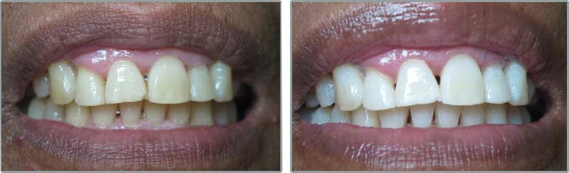 Teeth Whitening. Before and After Photos: Patient 2 - frontal view