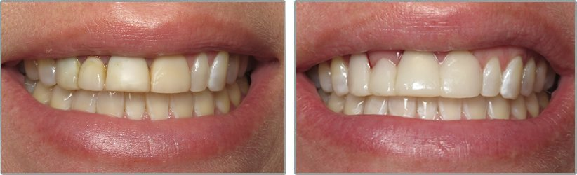 Teeth Whitening. Before and After Photos: Patient 3 - frontal view