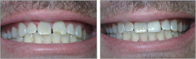 Porcelain Veneers. Before and After Photos: Patient 1 - frontal view