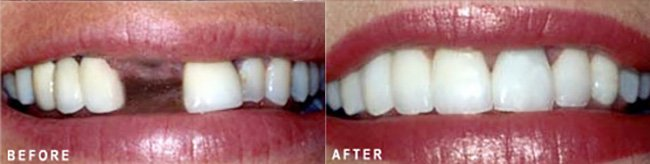 Photo: Before and After - Dental Implants Crown