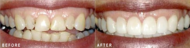 Photo: Before and After - Full Mouth Makeover