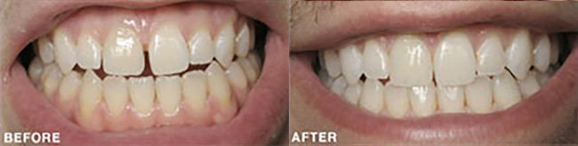Photo: Before and After - Invisalign