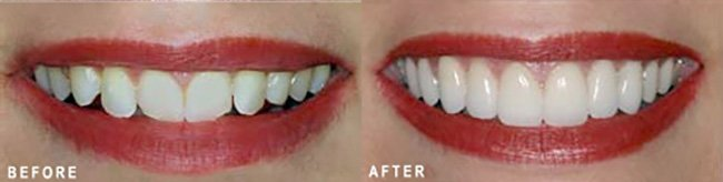 Photo: Before and After - Porcelain Veneers