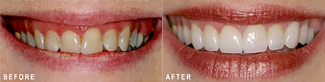 Photo: Before and After - Smile Design