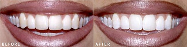 Photo: Before and After - Teeth Whitening
