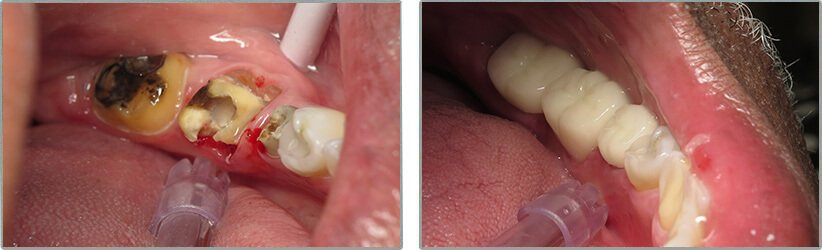 Dental Implants. Before and After Photos: Patient 11 - frontal view