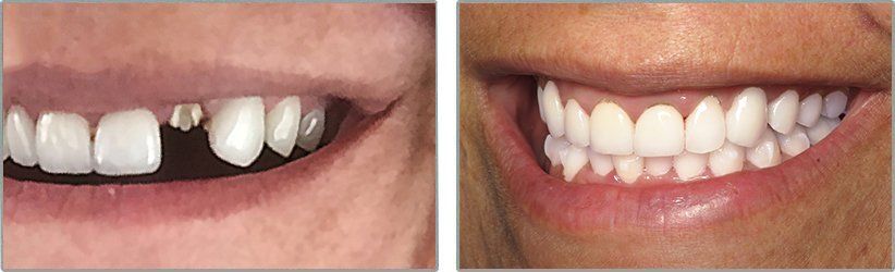 Dental Implants. Before and After Photos: Patient 15 - frontal view