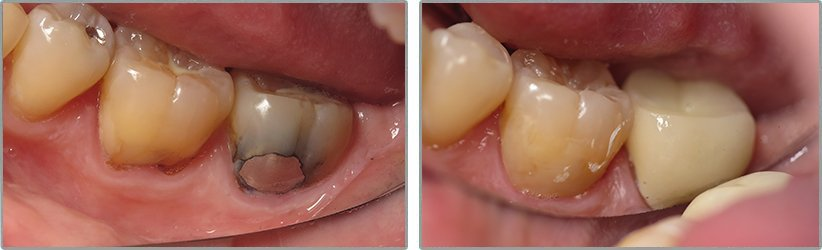 Dental Implants. Before and After Photos: Patient 16 - frontal view