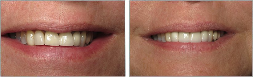 Silver Fillings. Before and After Photos: Patient 1 - frontal view
