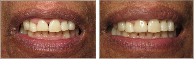 Dental Implants. Before and After Photos: Patient 7 - frontal view