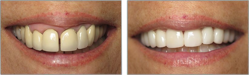 Dental Implants. Before and After Photos: Patient 8 - frontal view