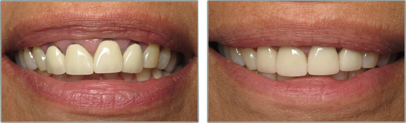 Dental Implants. Before and After Photos: Patient 9 - frontal view