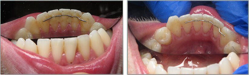 Deep Cleaning. Before and After Photos: Patient 4 - frontal view