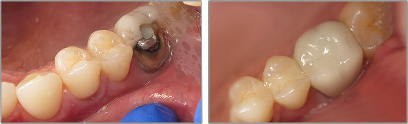 Dental Implants. Before and After Photos: Patient 1 - frontal view