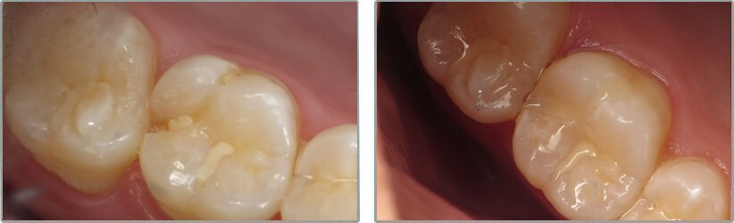 Fillings. Before and After Photos: Patient 10 - frontal view