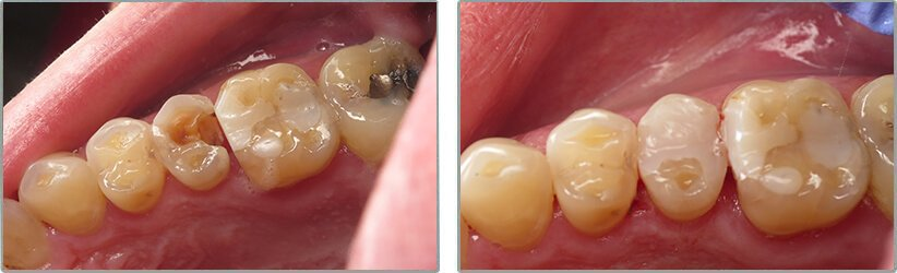 Fillings. Before and After Photos: Patient 11 - frontal view