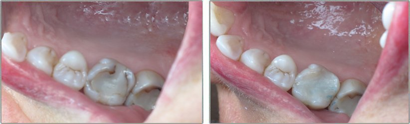 Amalgam Fillings. Before and After Photos: Patient 1 - frontal view