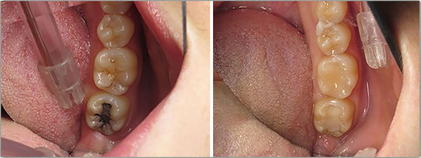 Fillings. Before and After Photos: Patient 1 - frontal view