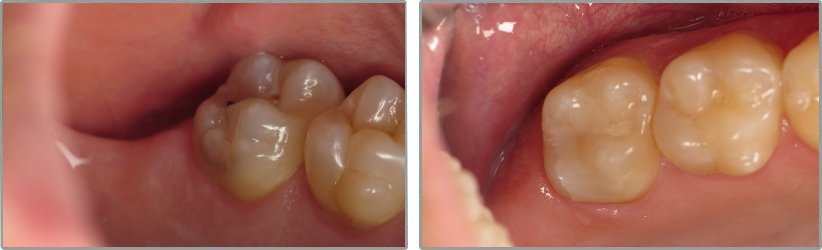 Fillings. Before and After Photos: Patient 12 - frontal view