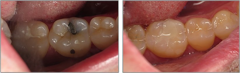 Fillings. Before and After Photos: Patient 13 - frontal view