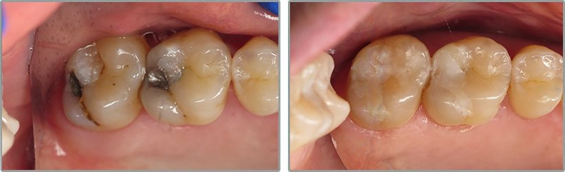 Fillings. Before and After Photos: Patient 14 - frontal view