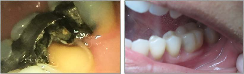 Inlay. Before and After Photos: Patient 4 - frontal view