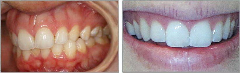 Invisalign. Before and After Photos: Patient 4 - frontal view