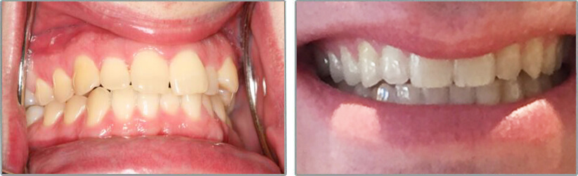 Invisalign. Before and After Photos: Patient 2 - frontal view