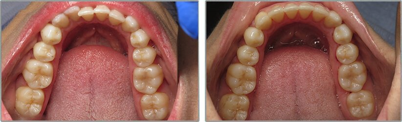 Invisalign. Before and After Photos: Patient 5 - frontal view