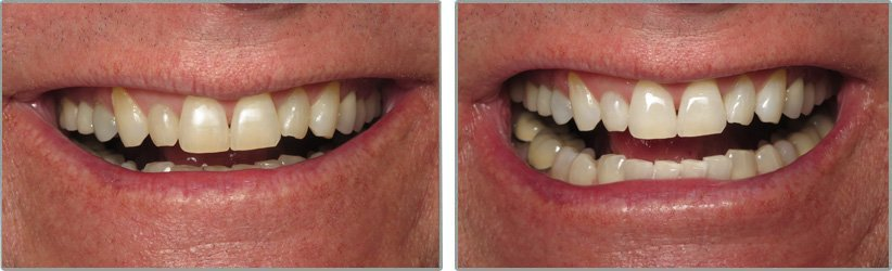 Teeth Whitening. Before and After Photos: Patient 4 - frontal view