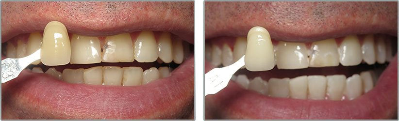 Teeth Whitening. Before and After Photos: Patient 5 - frontal view