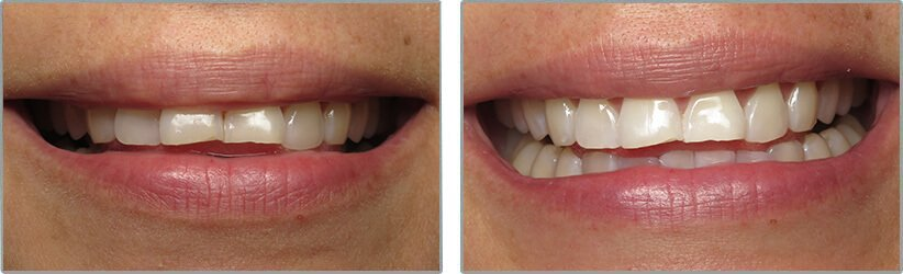 Teeth Whitening. Before and After Photos: Patient 6 - frontal view