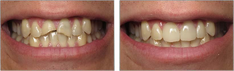 Porcelain Veneers. Before and After Photos: Patient 10 - frontal view