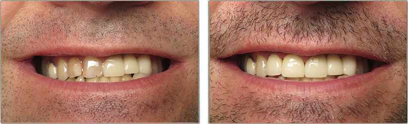 Porcelain Veneers. Before and After Photos: Patient 12 - frontal view