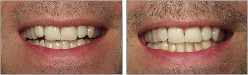 Porcelain Veneers. Before and After Photos: Patient 5 - frontal view