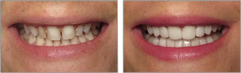 Porcelain Veneers. Before and After Photos: Patient 9 - frontal view